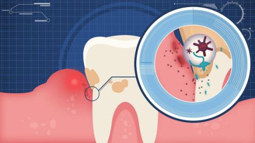 洗牙只是牙医套路?你对冲牙器的力量一无所知!