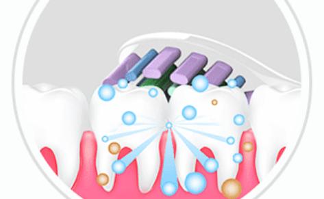 电动牙刷让人为之疯狂?电动牙刷好不好?