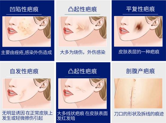 修复疤痕,祛疤膏有用吗?