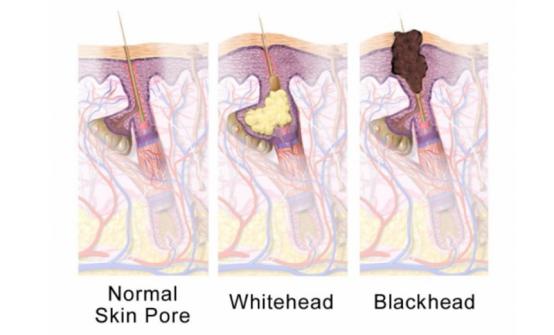 去黑头收毛孔神器到底是哪个?去黑头仪真的有效吗
