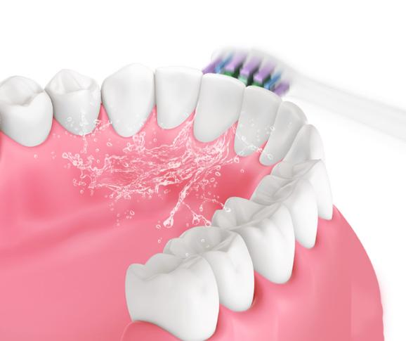 家喻户晓的电动牙刷好吗?应该如何选购电动牙刷