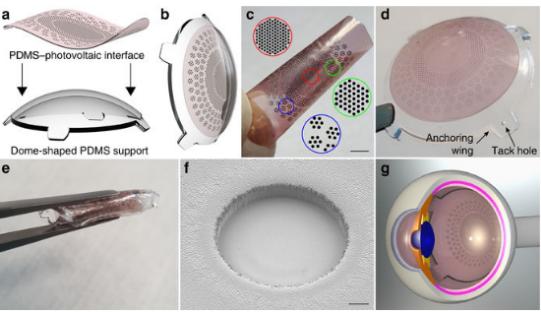 人造视网膜植入物进展
