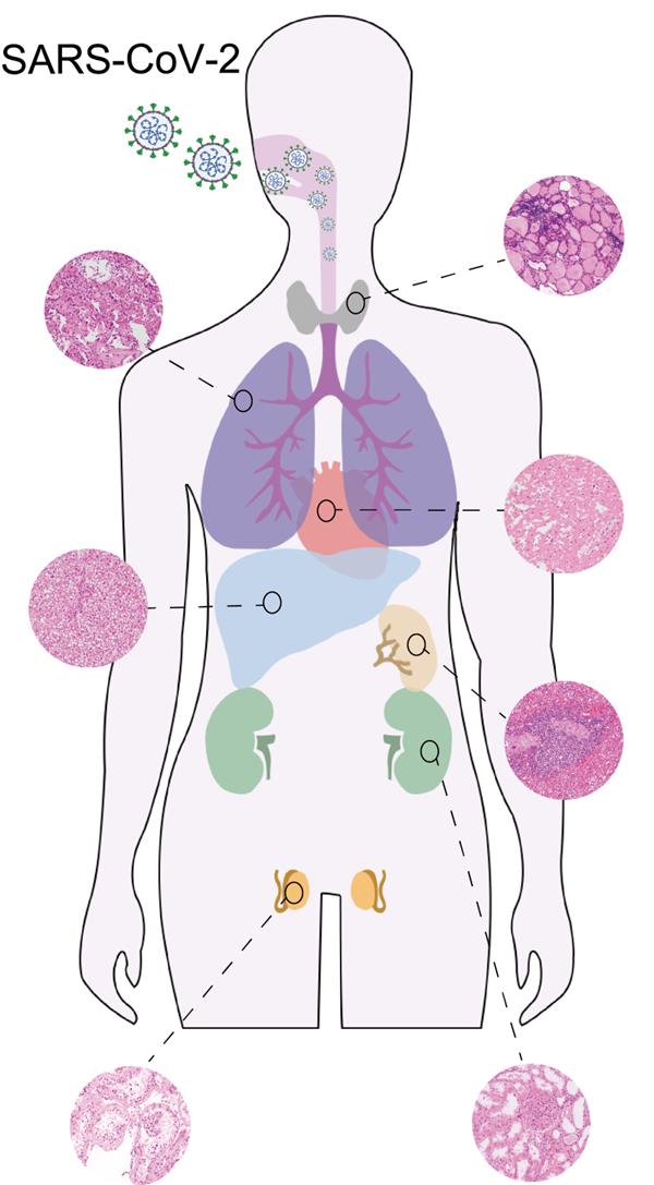 感染新冠病毒后:人體的5336個蛋白質分子都變了