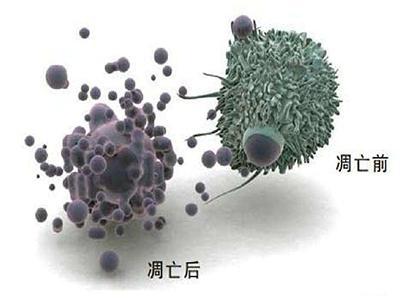 Cell重磅研究 细胞免疫治疗与放疗联用将使万千癌症患者受益!