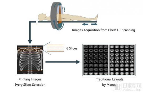 用AI重塑影像工作流:柳叶刀子刊 EBiomedicine发表南京鼓楼医院与推想科技最新成果