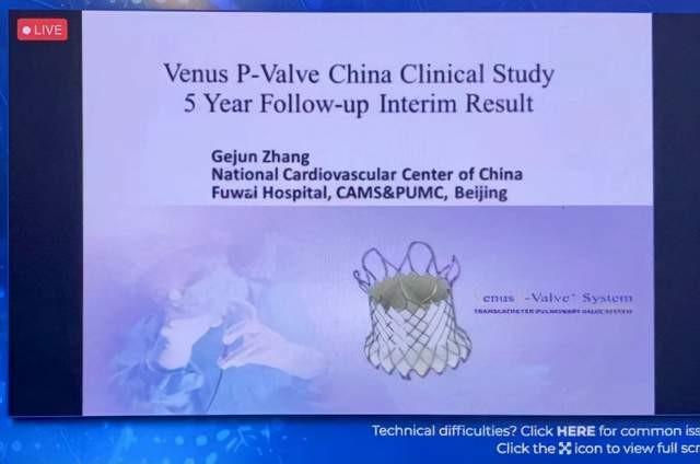 两项长期临床研究公布 国产瓣膜VenusP-Valve优于国际同类产品