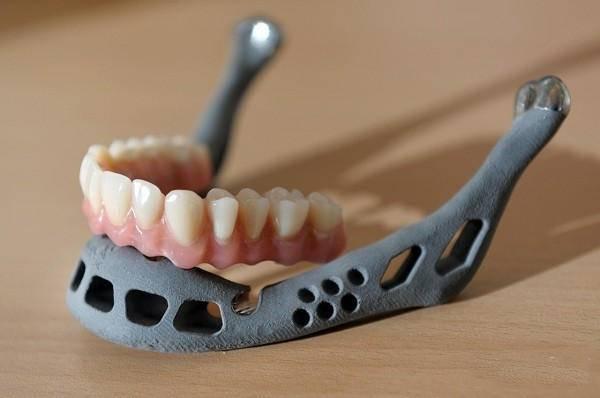 3D打印机在医疗行业使用价值