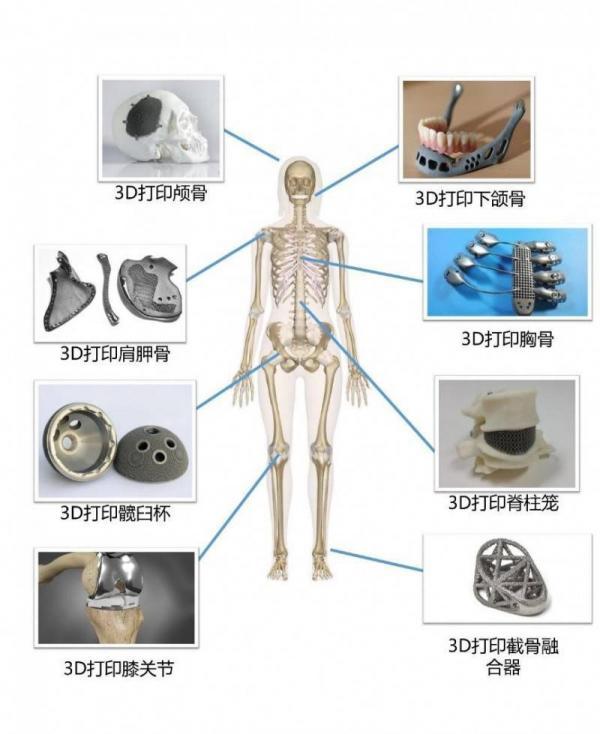 金属3D打印的后续处理工艺详解