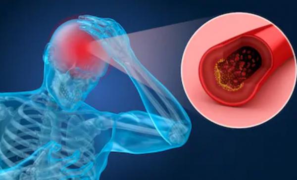 中风患者救星来了!硒纳米颗粒可定向治疗缺血性脑卒中