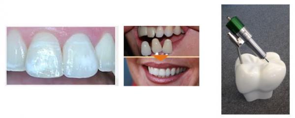 德国SycoTec的牙科义齿雕刻机电主轴
