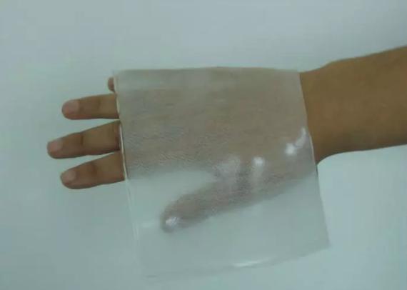"""新材料情报NMT丨医疗行业丢不起的""""水凝胶"""""""
