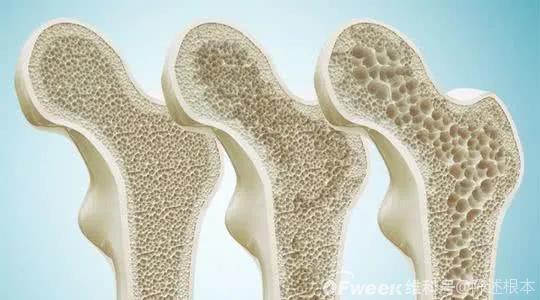 陈根:含糖涂层如何供养骨骼生长?