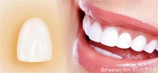 陈根:单克隆抗体,实现成人掉牙可再生