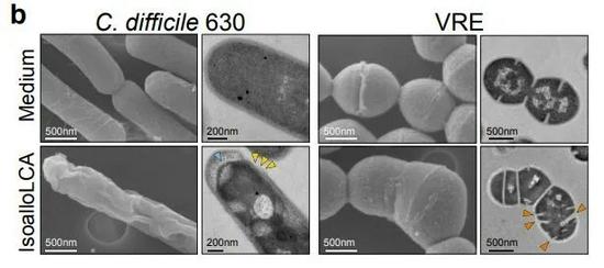 陈根:长寿的秘诀——独特肠道菌群